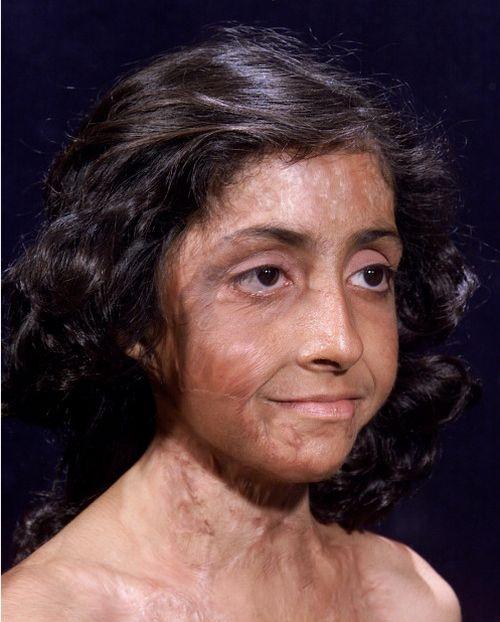 История удивительного спасения афганской девочки Зубайда Хасан (4 фото)