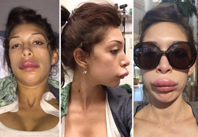Последствия пластической хирургии (5 фото)