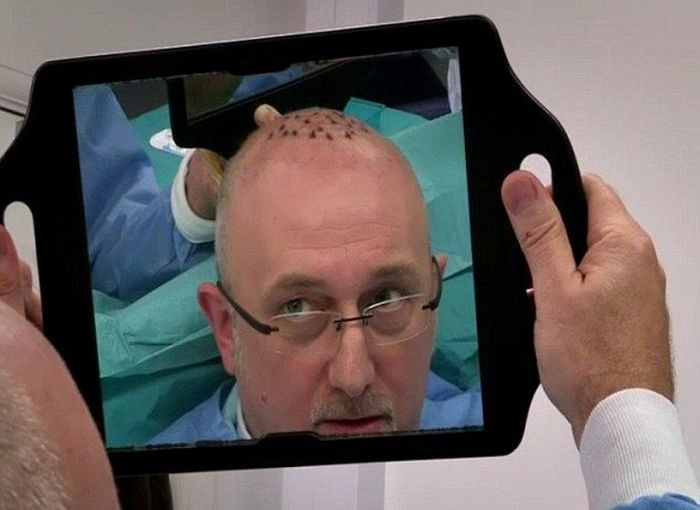 Не все операции по пересадке волос хорошо заканчиваются