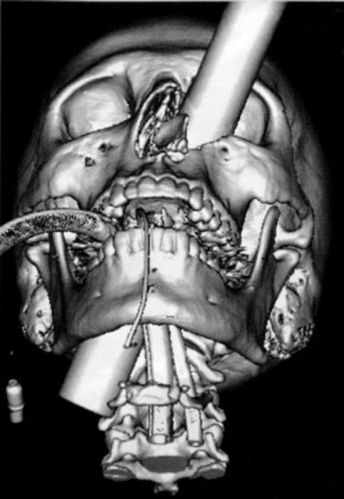 Предметы, которые можно обнаружить в теле человека с помощью рентгена (37 фото)