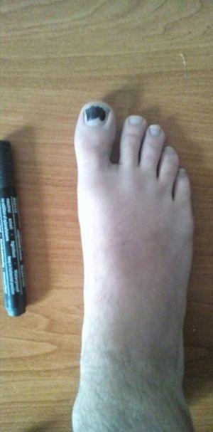 Простой способ решить проблему дырки в носке (3 фото)
