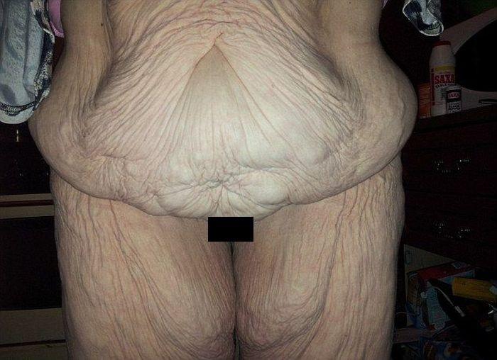 Результаты удаления лишней кожи (4 фото)