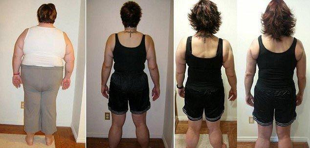 Что произойдет, если сбросить лишние 120 кг веса (15 фото)