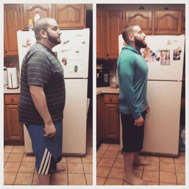 """""""До"""" и """"после"""". Люди, которые сумели избавиться от лишнего веса"""