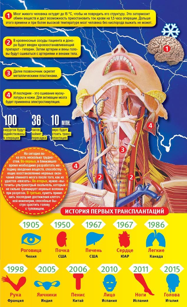 Донор для первой в мире операции по пересадке головы человека (4 фото)