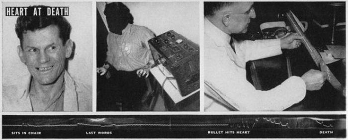 Медицинский эксперимент над приговоренным к смертной казни (4 фото)
