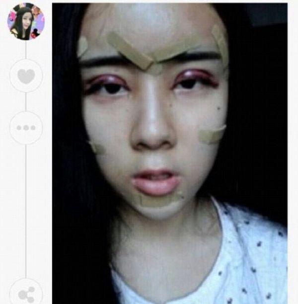 Результаты серии пластических операций 15-летней китаянки (11 фото)