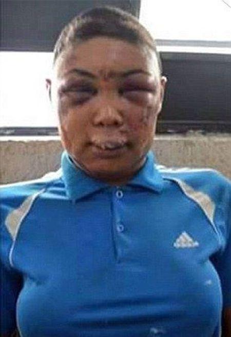 В Бразилии разгорается скандал из-за жестокого обращения тюремных надзирателей с заключенным-транссексуалом (9 фото) (