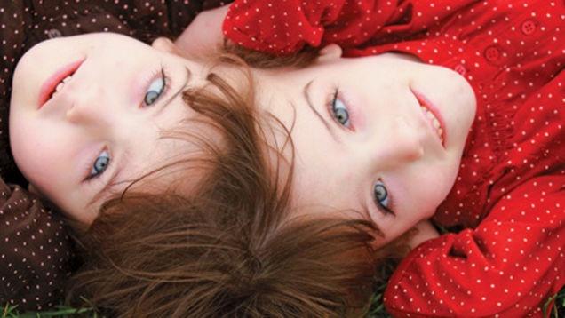 Интересные факты о близнецах (16 фото)