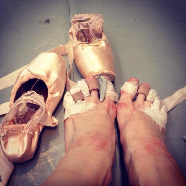 Как выглядят ноги профессиональных балерин (8 фото)