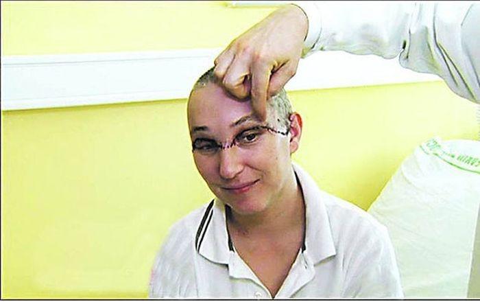 Удивительные хирургические операции на голове человека