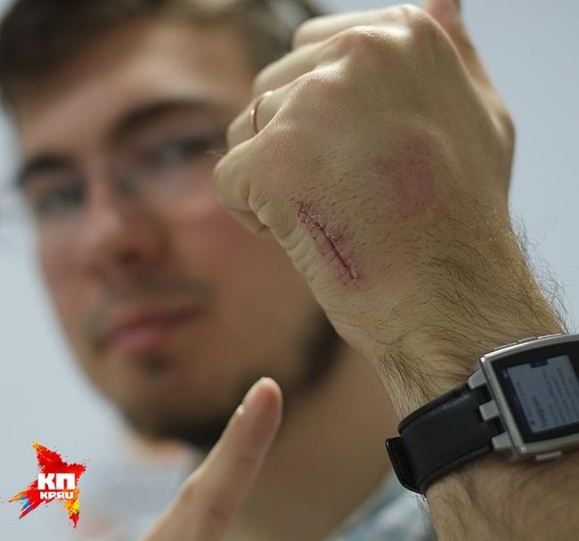 23-летний парень вживил себе в руку чип для удобства оплаты проезда в метро (4 фото)