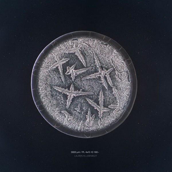 Слезы под микроскопом (19 фото)
