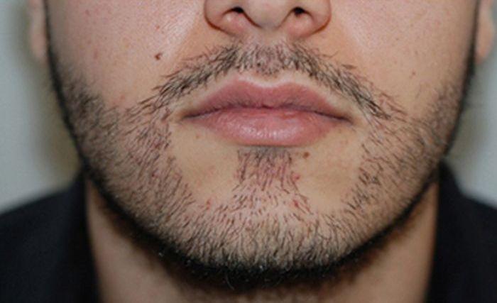 Пересадка волос, для тех кому не хватает растительности (4 фото)