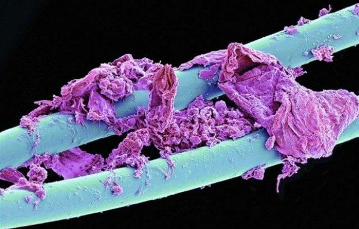 Необычные снимки, сделанные под микроскопом (25 фото)
