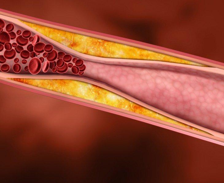 Как без лекарств очистить сосуды и понизить холестерин