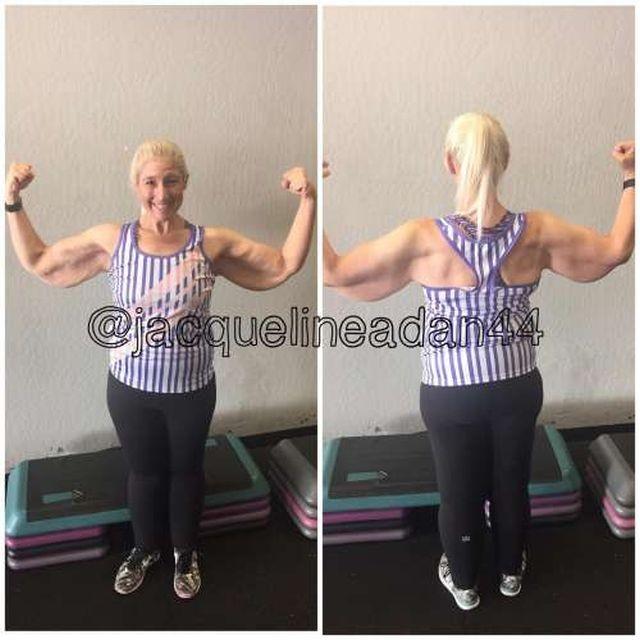 Девушка, сбросившая 160 кг, теперь борется с лишней кожей (6 фото)