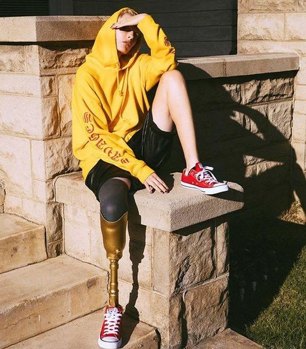 Американская модель лишилась ноги из-за использования тампона (10 фото)