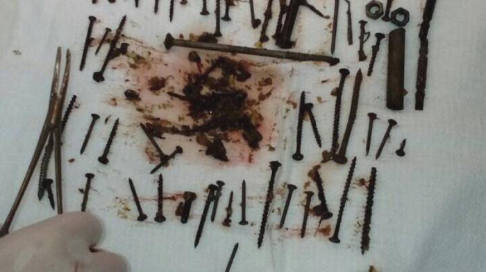 Бурятская пенсионерка проглотила 152 железяки, чтобы вылечить анемию (4 фото)