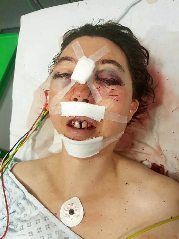 Хирурги по частям собрали череп женщины, попавший под копыта лошади (8 фото)
