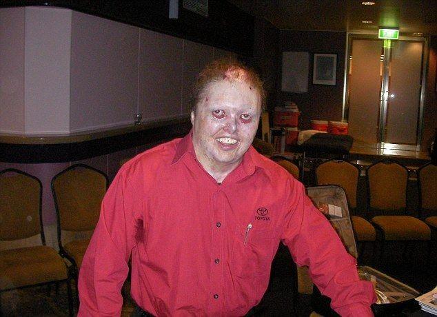 Тяжелая болезнь превратила мужика в монстра (9 фото)