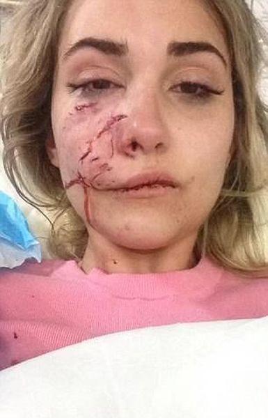 Питбуль изуродовал лицо модели, что не помогла операция (8 фото)