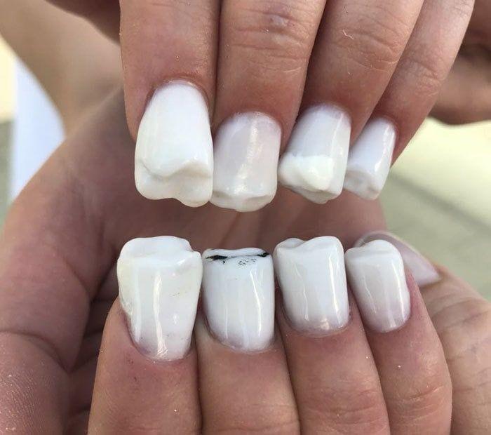 Московские мастера маникюра делают вместо ногтей зубы (9 фото)