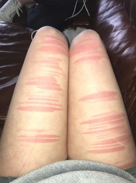 Почему не стоит носить дырявые джинсы в жару (18 фото)