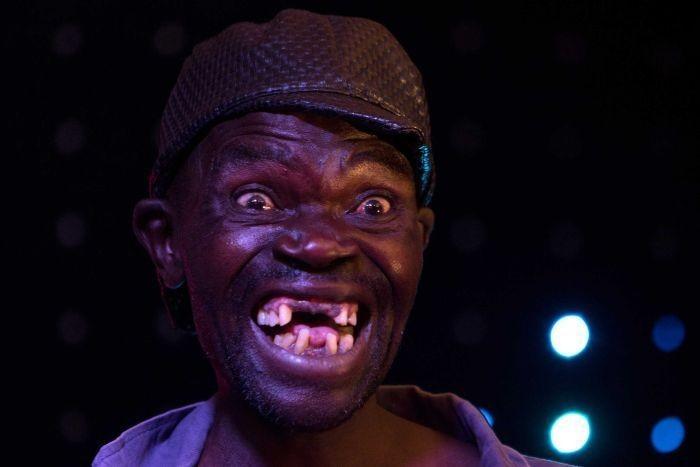 Объявлен «Мистер Урод» Зимбабве (5 фото)