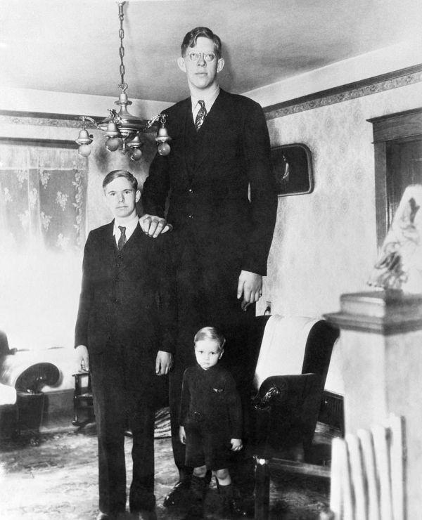 Роберт Уодлоу - самый высокий человек (14 фото)