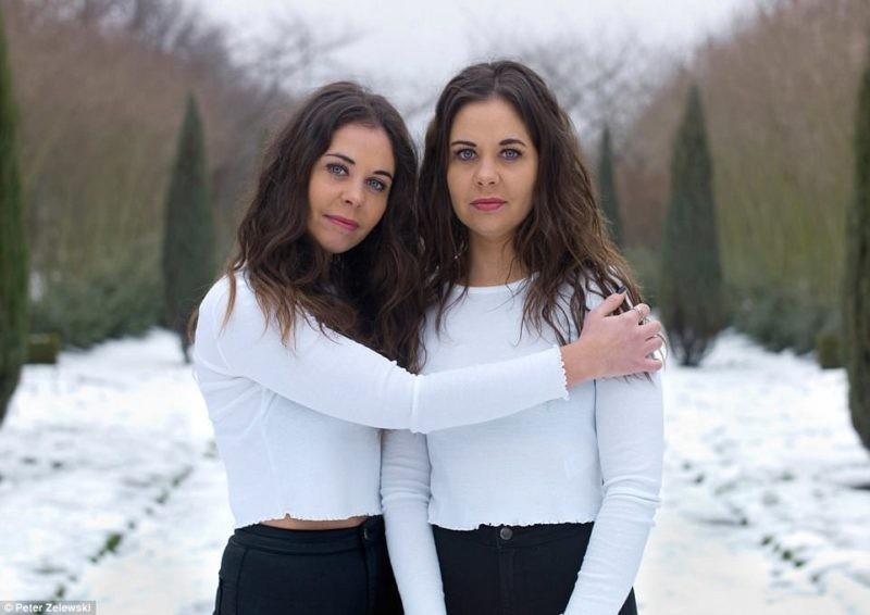 Похожие и в то же время разные близнецы