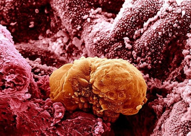 Фото человеческих органов под микроскопом